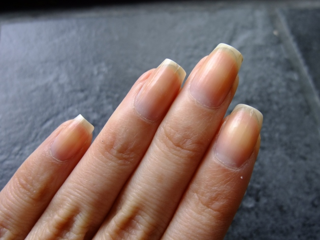 Before Nfu Oh Cuticle Remover 01